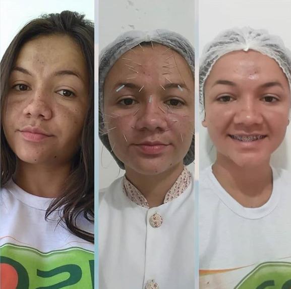 Resultados da terceira sessão de acupuntura Facial realizada pelo Dr Valdemir Paes, CRO: 1856-PI.